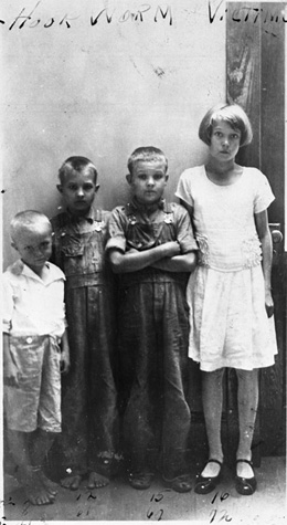 Children of J.D. Tillman - victims of hookworm: Leon County, Florida (1931)