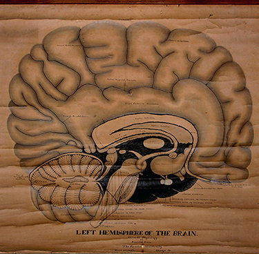 Teed's chart of the brain, March 11, 1896